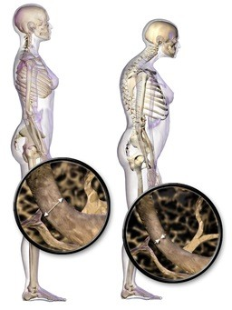 types of osteoporosis
